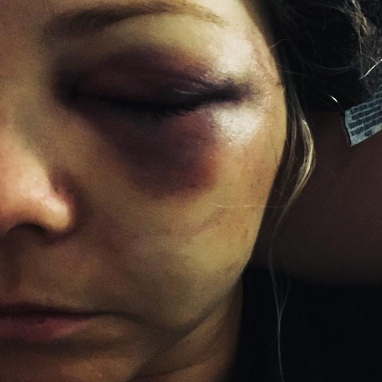 Jake Frecker did severe damage to her left eye.