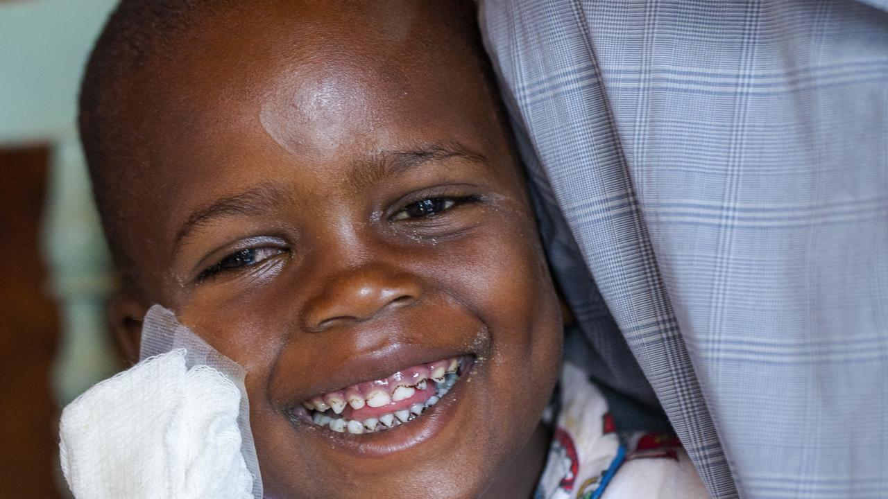 Five-year-old Night from Kenya is able to see once more, after Gympie region supporters of the Fred Hollows Foundation contributed to getting her a crucial medical procedure.