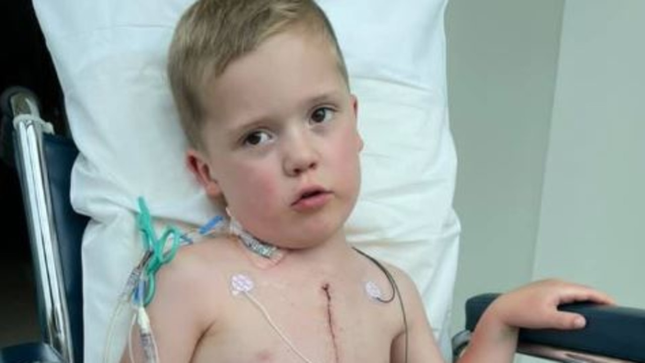 William Bayliss, 4, of Victoria, was born with half a heart and his only wish this Christmas is for Santa to bring him a new heart. Picture: GoFundMe