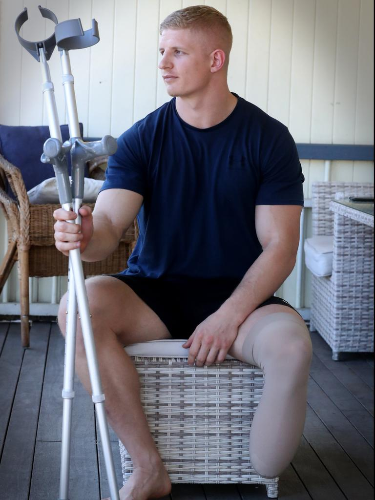 Former Sarina Crocodiles junior Rogan Dean had his left foot ripped off in a motorbike crash last month, forcing doctors to amputate his leg. He's now planning to run the New York Marathon and compete in the Paralympics to prove he's still able to do everything he used to do. Pic Jamie Hanson