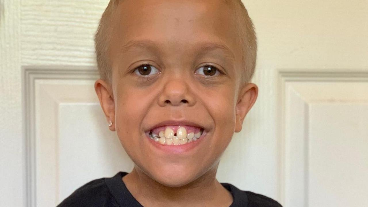 It's the viral video the world will never forget – seeing the pain and suffering in young Quaden Bayles eyes. But life for him today is very different.