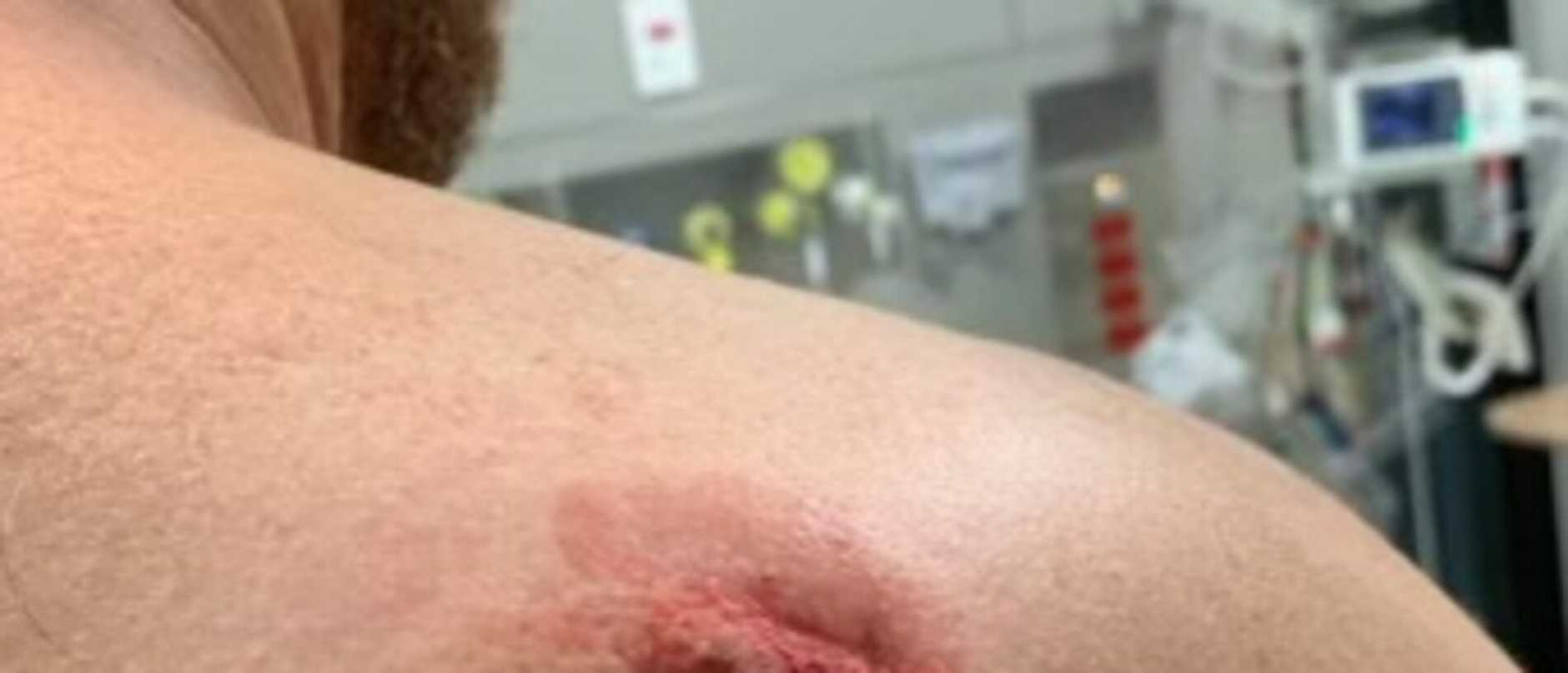 Bite marks are seen on the shoulder of a man who the Health Services Union said was injured at Port Macquarie Base Hospital. Supplied via NCA NewsWire.