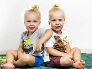Study shows identical twins not as similar as first thought