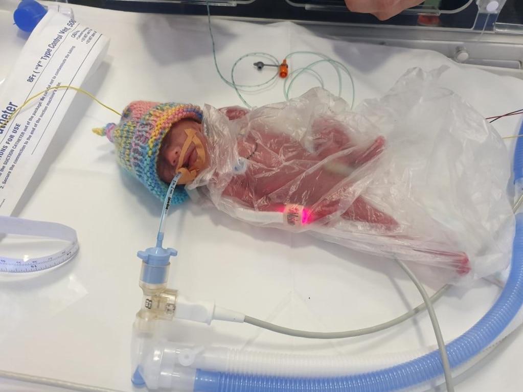 Skylah Austin was born at 24 weeks, weighing just 475 grams.