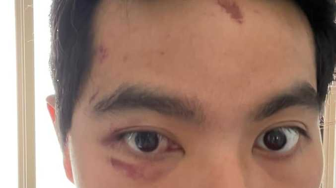 Victim says attacker used racial slurs in alleged assault