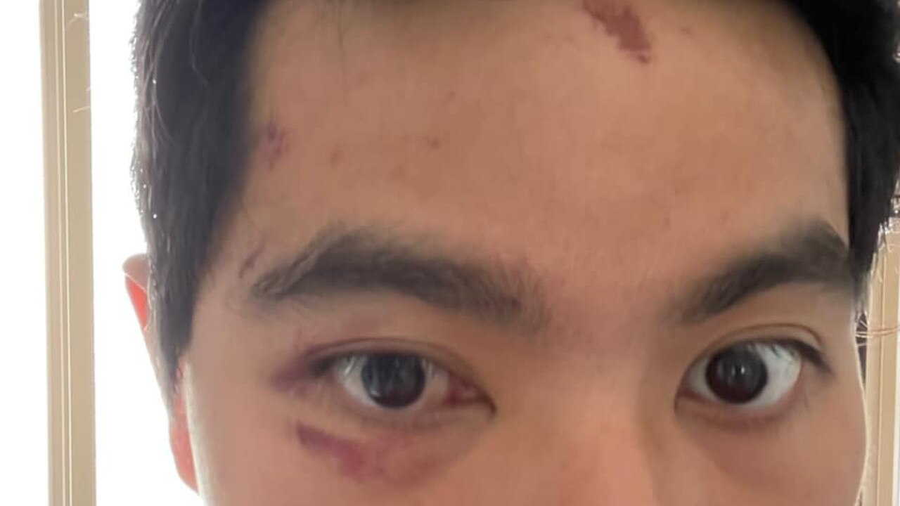 Andrew Shih was attacked in Dawson Phipps Park in Gatton on January 20.