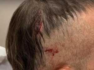 Croc attack survivor's terrifying injuries
