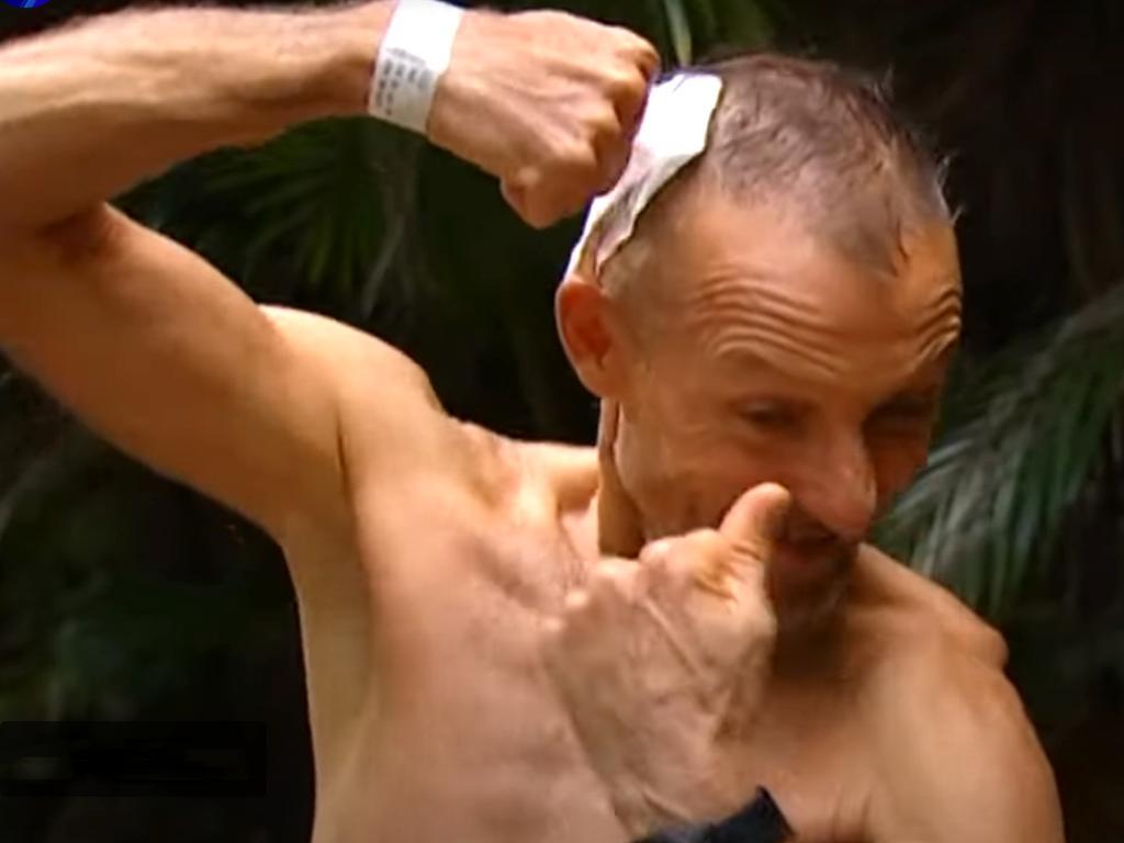 Lake Placid, Cairns crocodile survivor Mark Ridge gives a thumbs up. Picture: Seven News