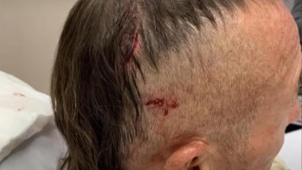 "Mark Ridge said he had a ""few holes"" in his head. Picture: 7 News"