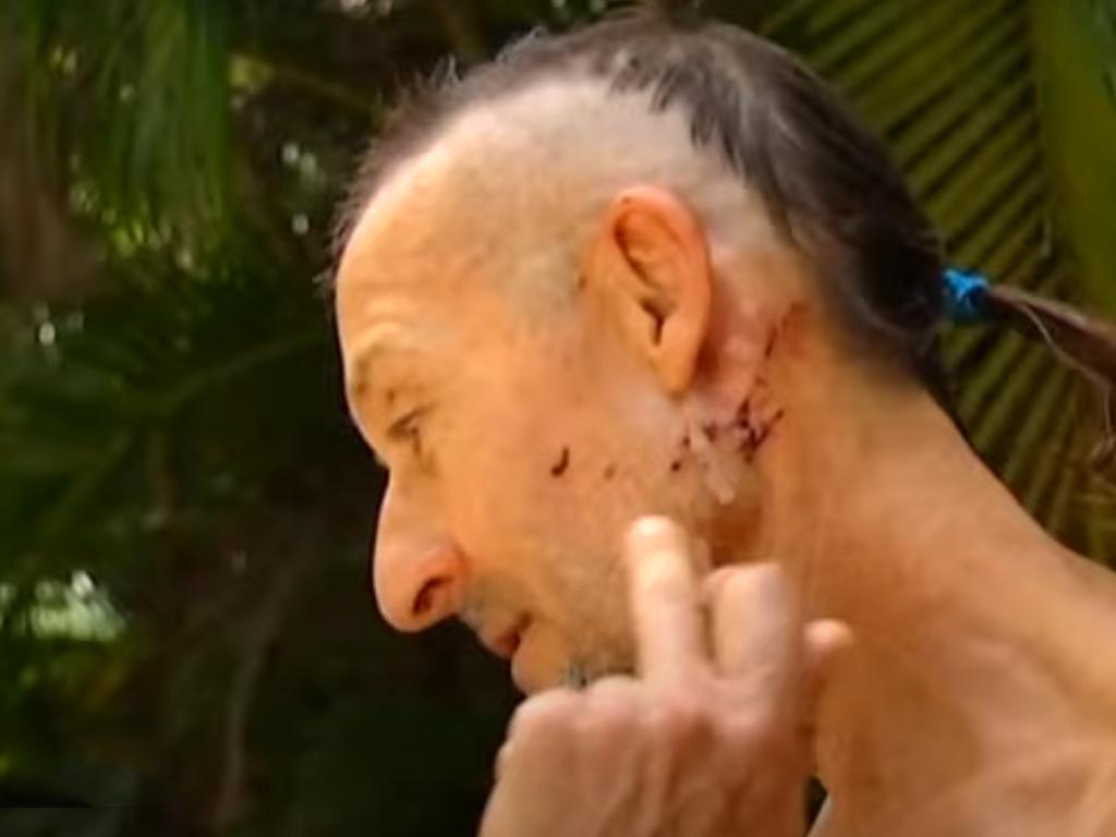 Cairns crocodile bite survivor Mark Ridge shows where the crocodile grabbed him. Picture: Seven News