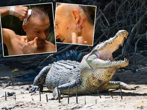 Man bitten on head by crocodile wants it shot dead