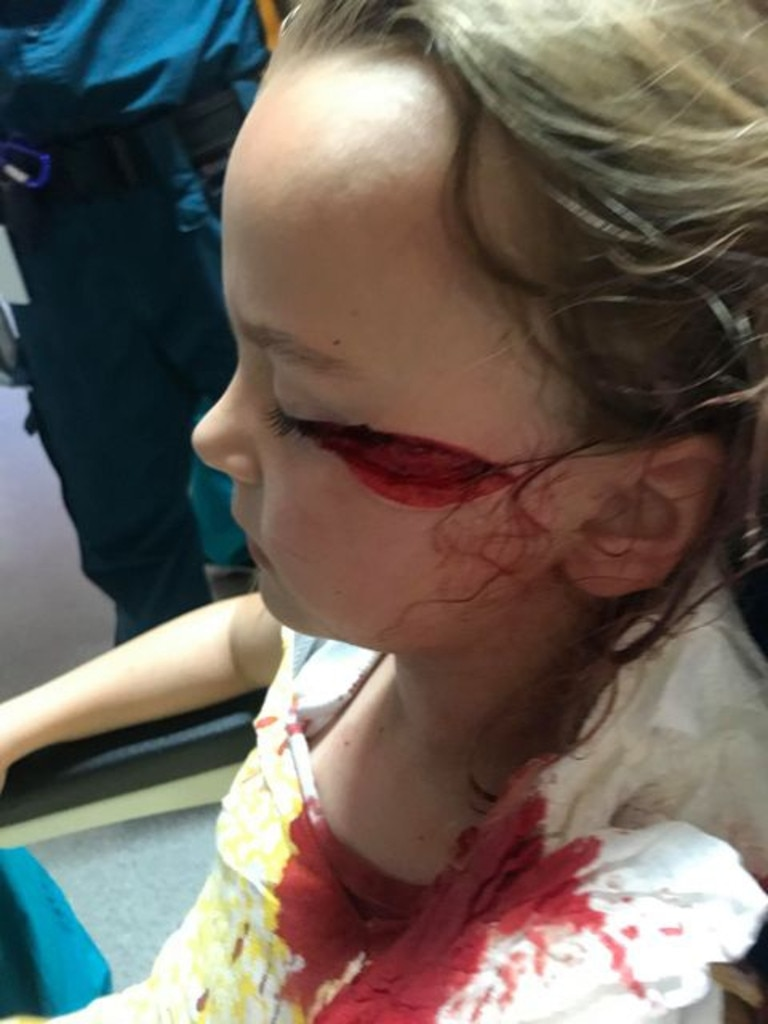 Savana Pierce, 6, suffered horrific injuries to her face when she was struck by a ceiling fan.