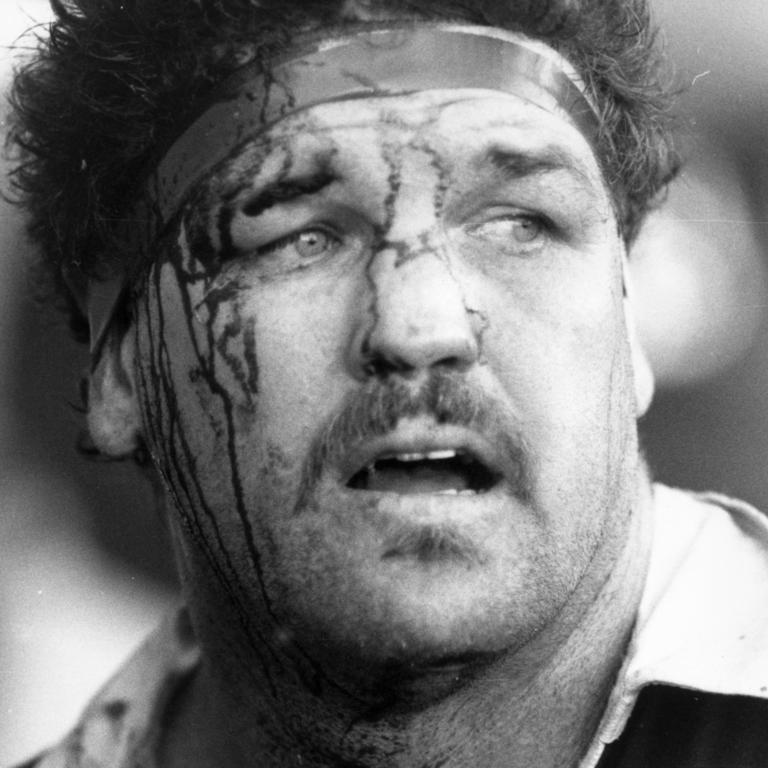 Greg Dowling bloodied while playing for Queensland.