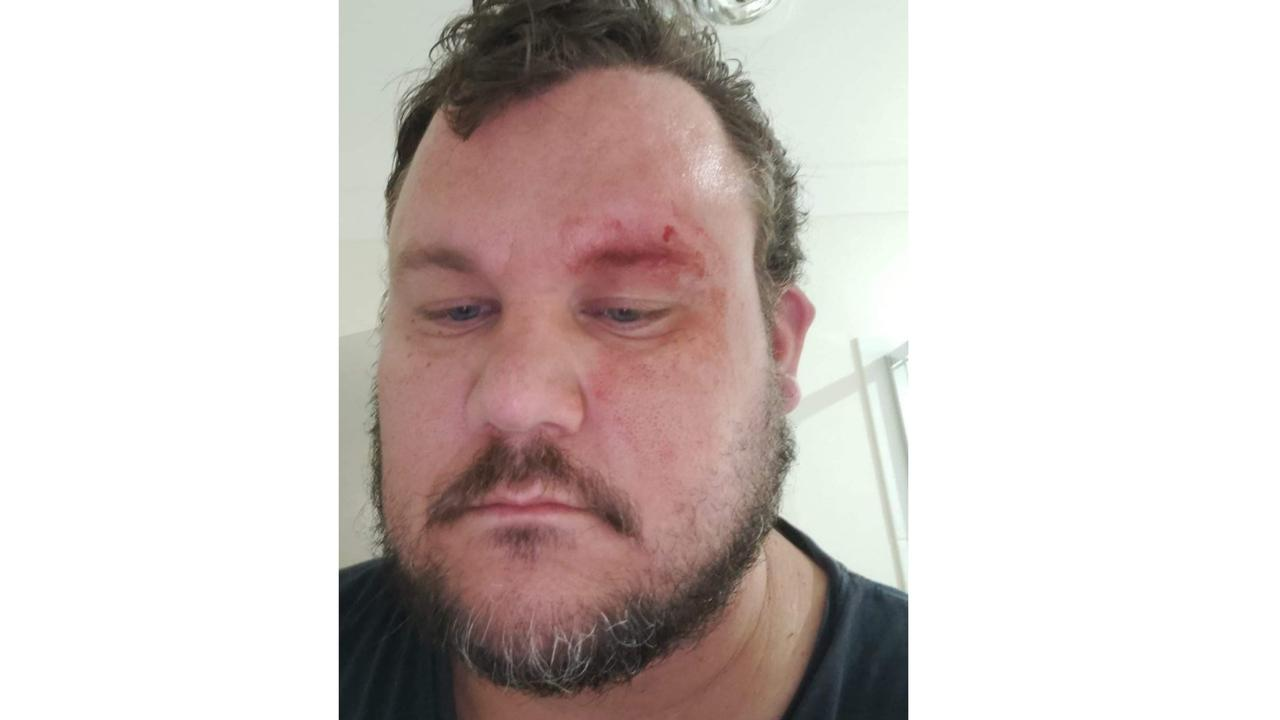 Jason Gambier was attacked by two men outside his Ripley home on Sunday morning.