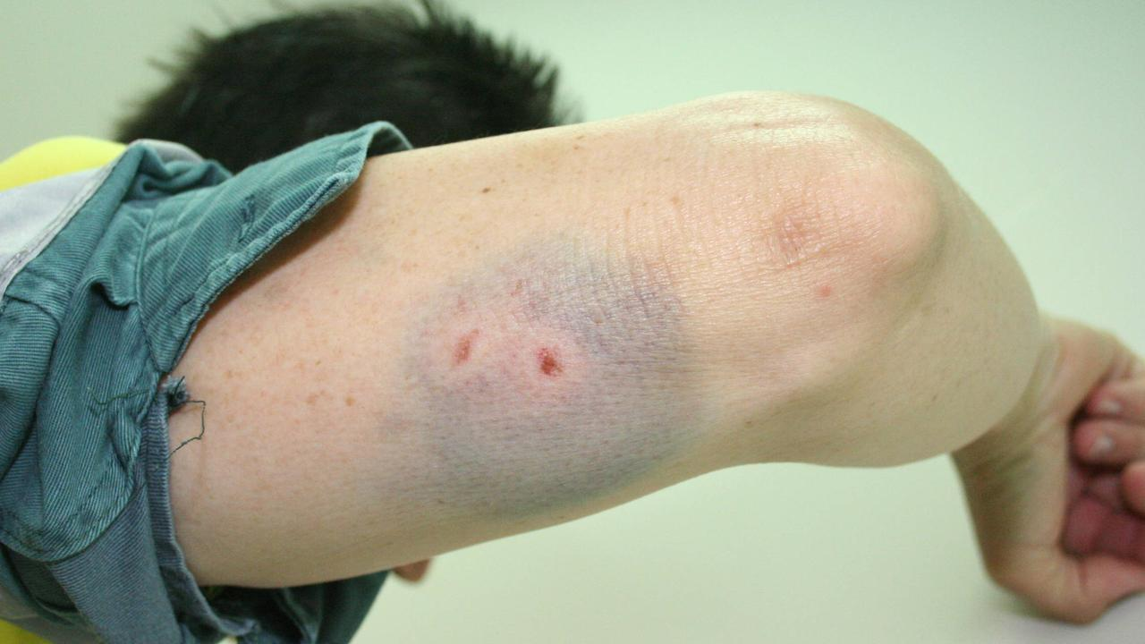 An Energex worker with a bite to his upper arm, causing large bruising.