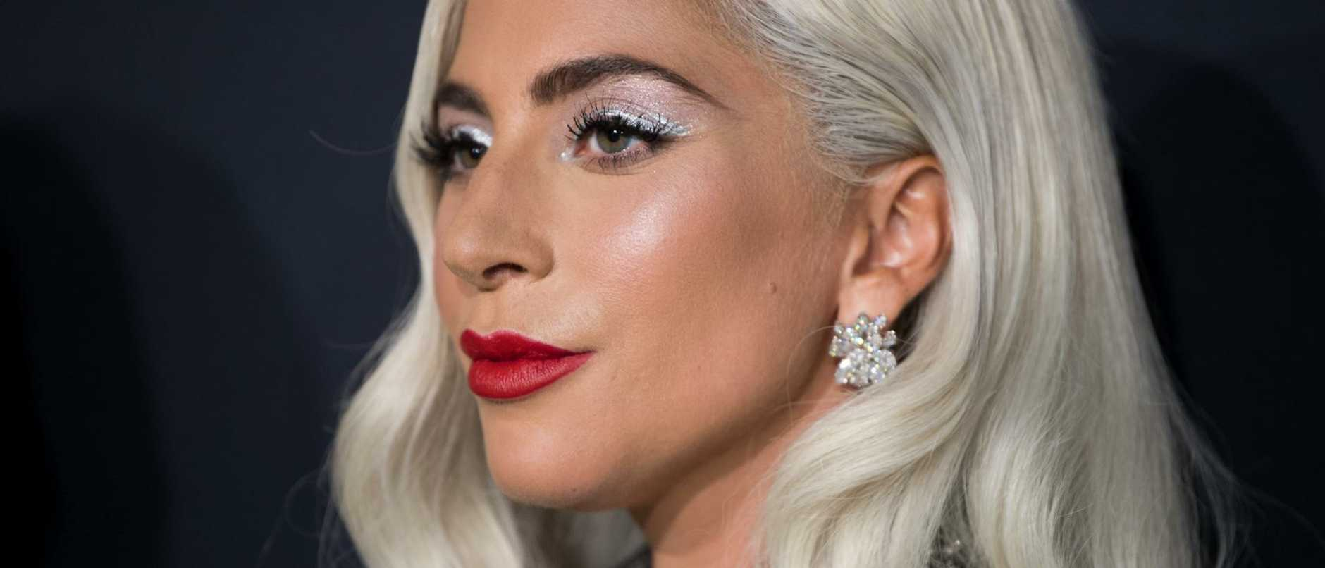 Police have released new details related to a shocking attack that ended with a dog walker shot and Lady Gaga's beloved pets stolen.