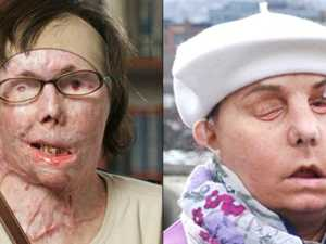 Survivor: Second face transplant a 'gift'