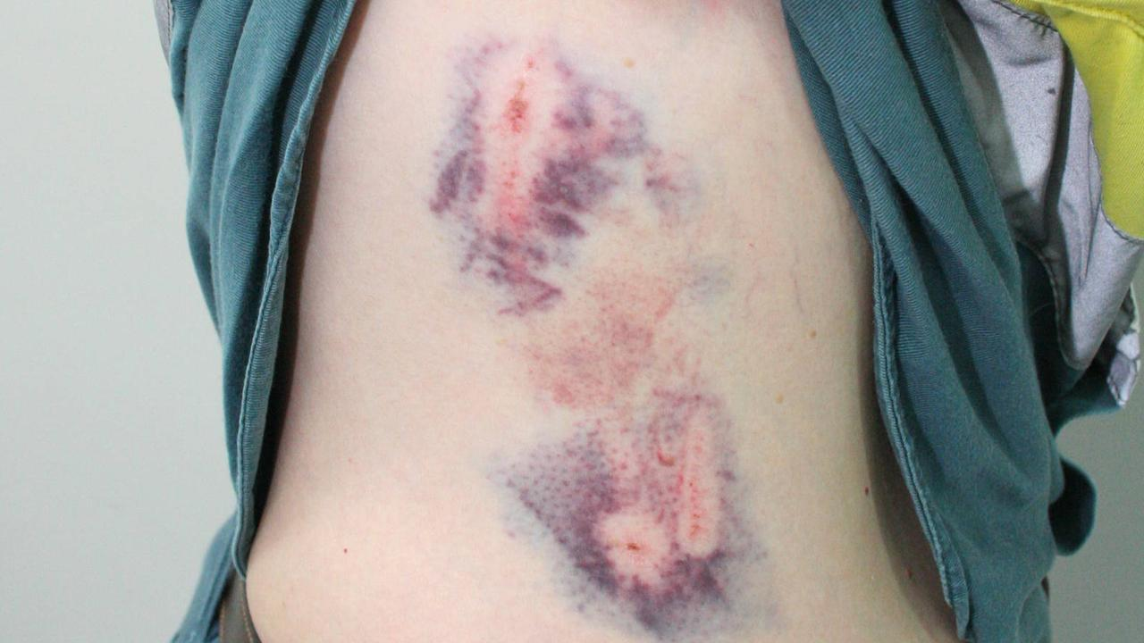 Ergon Energy file photos of previous injuries on meter readers.