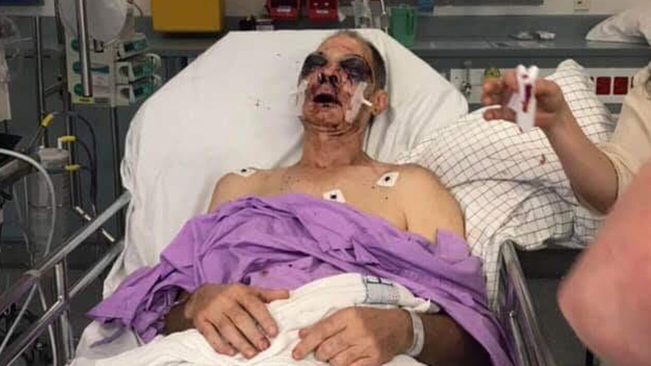 Greg Sands suffered a broken nose, cheek, eye sockets and jaw when he was bashed at Woodford jail.