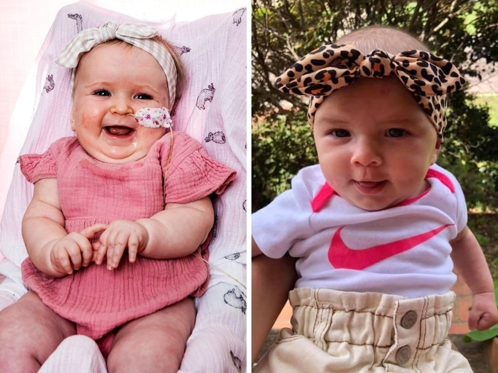Oakley Gough (left) and Oakley Atkins suffer from the same rare condition.