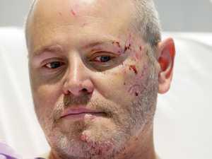 Dad wins $2.5m lawsuit for horrific head-on collision