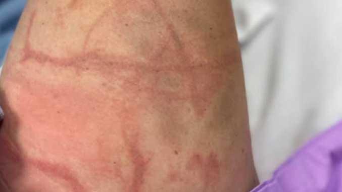 Stinger victim tells of 'excruciating, horrendous' pain