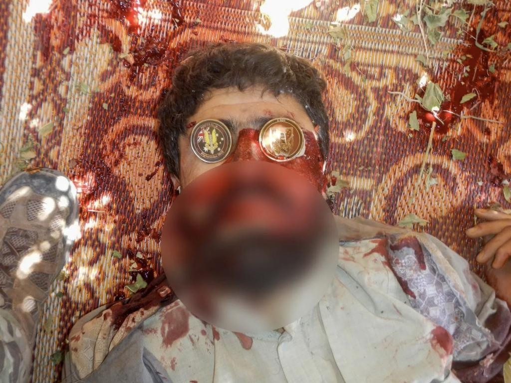 A suspected dead Taliban fighter with two souvenir Australian military coins covering his eyes. Pictures: SMG/The Age/60 Minutes