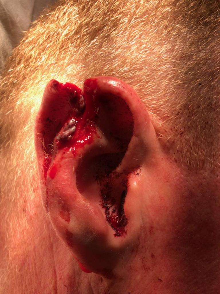 GRAPHIC WARNING: A South Lismore man has been accused of biting the ear of an off-duty police officer, leaving him with significant injuries.