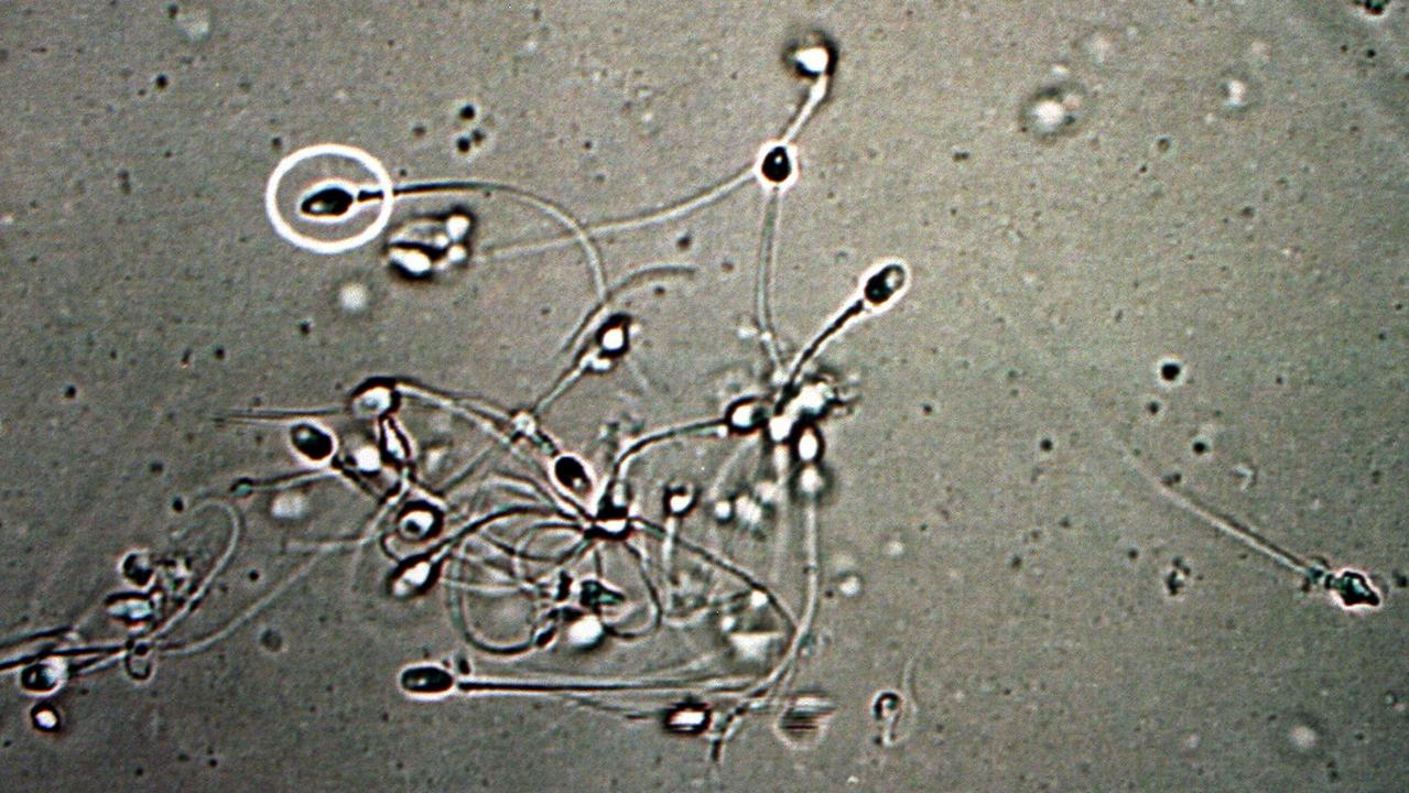 Dr Shanna Swan says that the sperm count of Western men has plunged by over 50 per cent in less than 40 years.