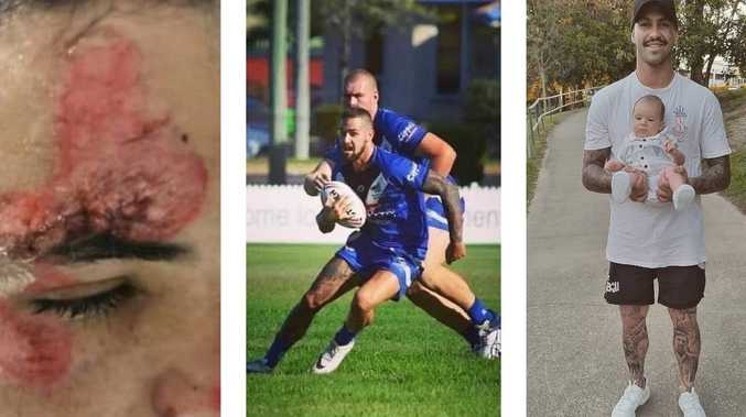 GRAPHIC IMAGE: Dad's footy comeback after horror crash