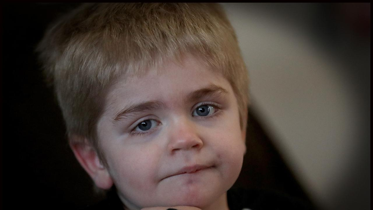Oliver McCoombes, from Ipswich, also has childhood dementia disease. Picture: Jamie Hanson