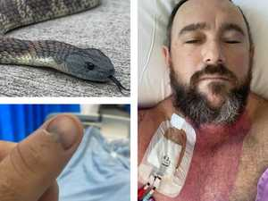 Snake catcher's fight with death revealed