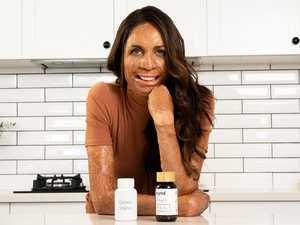 Turia Pitt: 'I don't want to give trolls any more airtime'