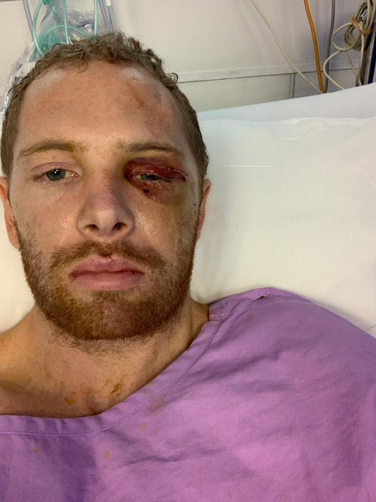 Roos skipper Mitch Bird suffered a serious facial injury in a head clash that put him out for the season.
