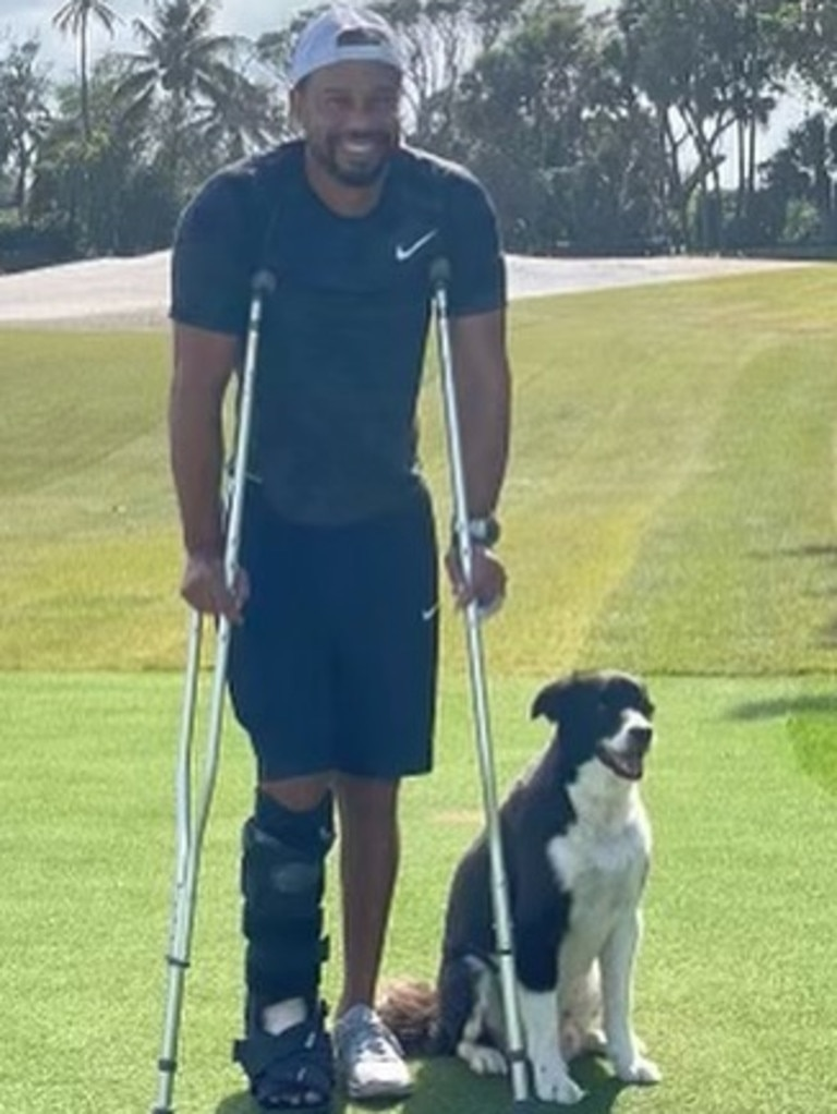 Tiger Wood's first photo since his horror car crash. Picture: Tiger Woods/Instagram