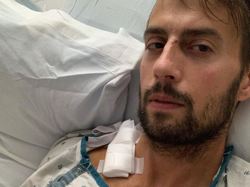 Dogwalker Ryan Fischer was shot by the dognappers.