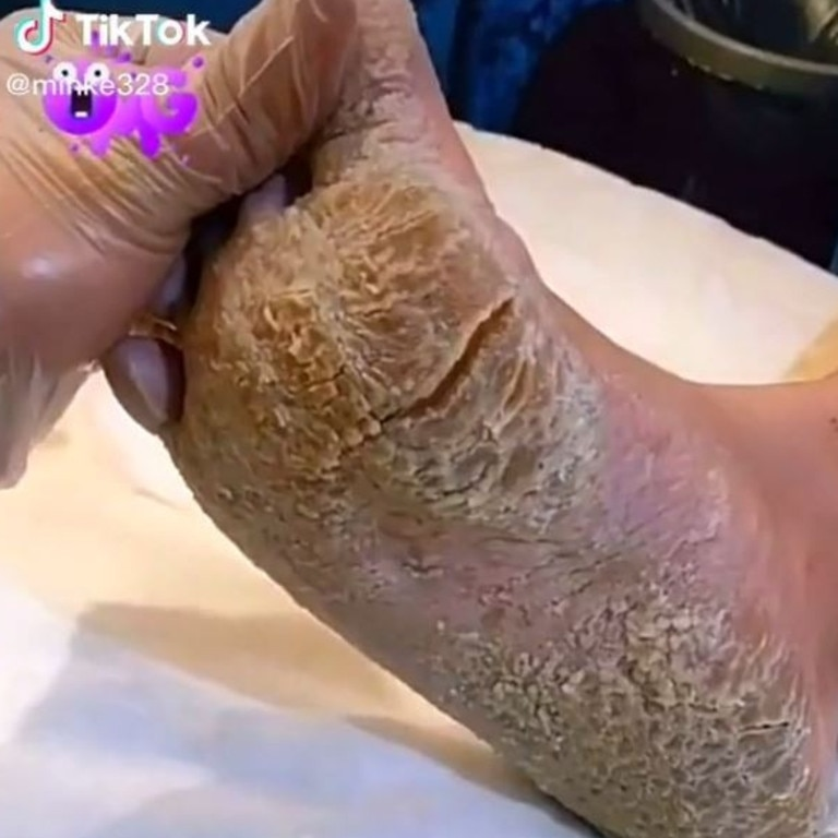 One beautician was in for a nasty shock when it came to the state of their client's feet. Picture: Tiktok/minke328