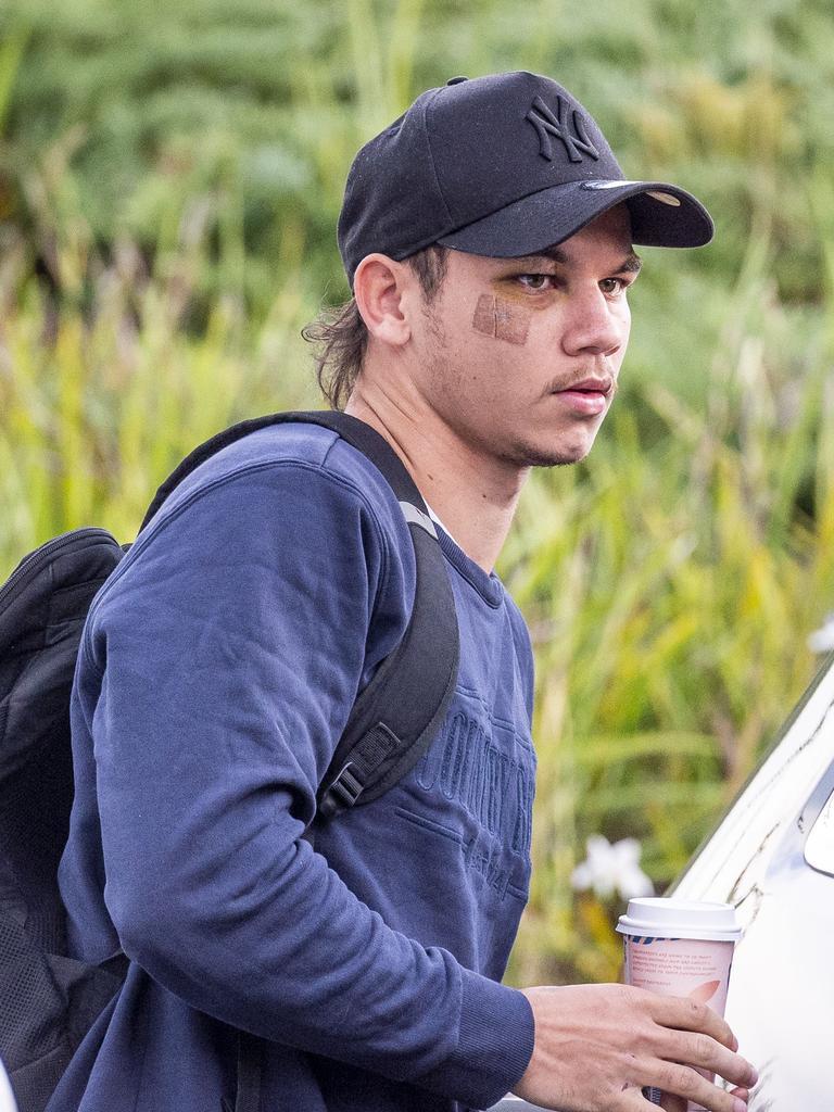 Daniel Rioli arrives at training with a black eye. Picture: Jake Nowakowski