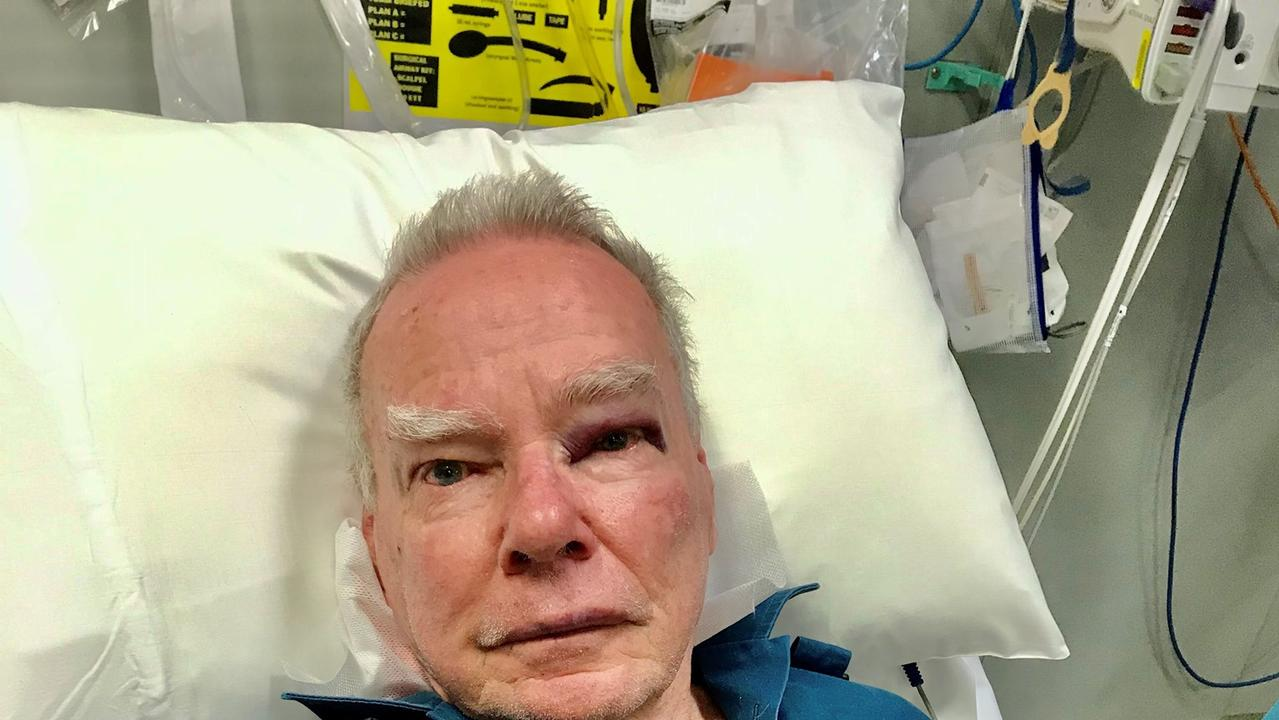 DISGRACEFUL: Dalby paramedic Rob sustained facial injuries as well as hand and knee injuries after he was attacked and pushed down a flight of stairs when he was on a job.