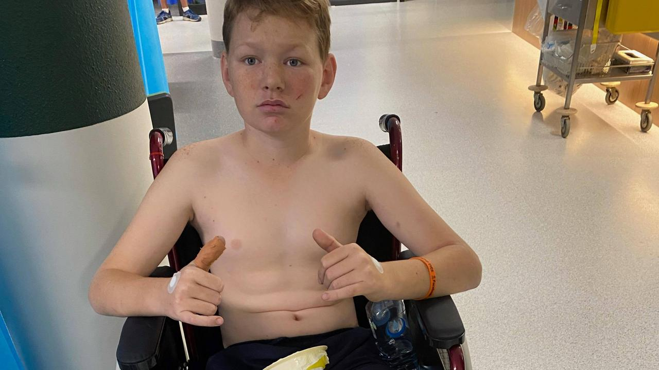BRAVE BOY: Liam Sladden, 13, was sitting in one of the front seats of the school bus that was hit head-on in a horror Warrego Highway crash last Friday. He suffered two broken bones in his leg and a broken thumb.