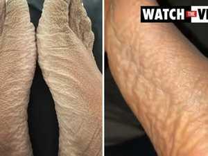 Woman's crusty feet after 16-hour bath