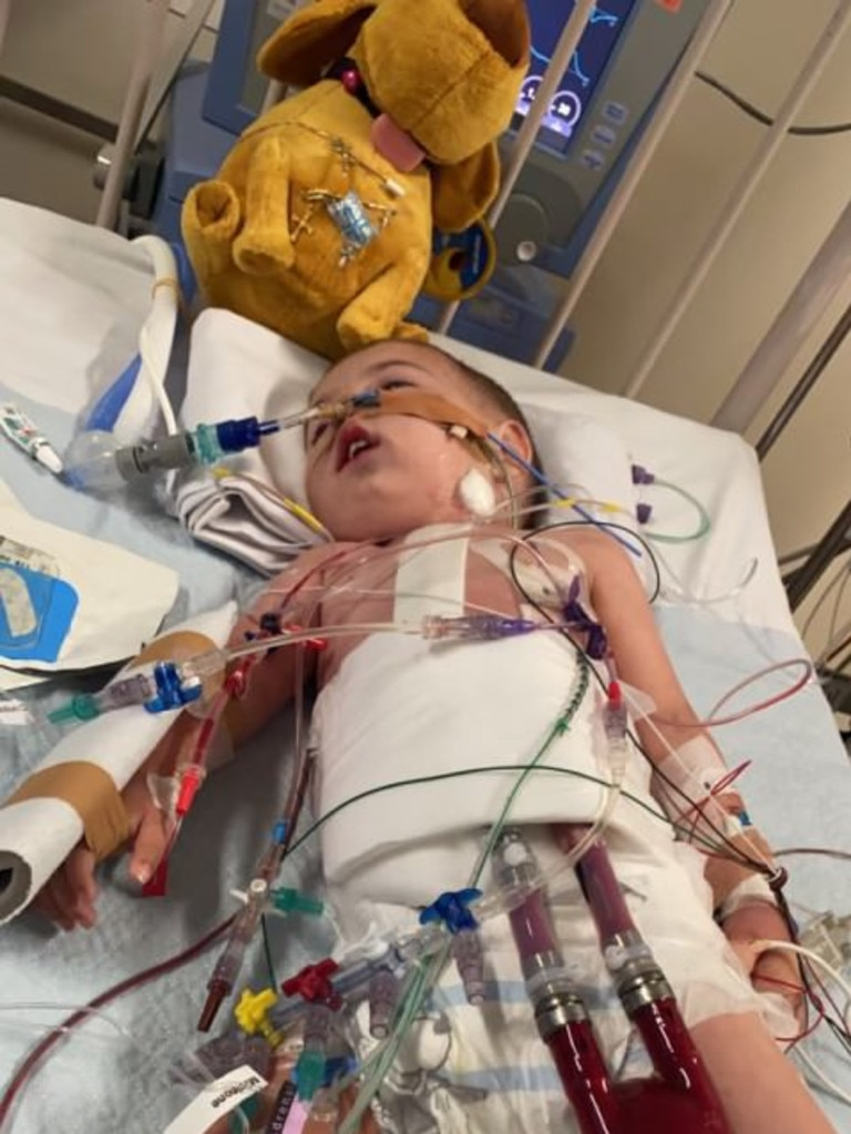 Alexander is currently kept alive using a Berlin Heart machine.