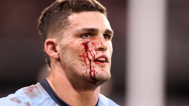 Nathan Cleary was in the wars early in the first half.